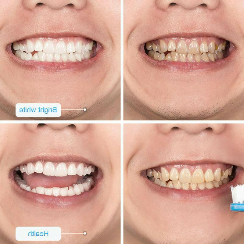 Baking Soda Flavor Teeth Whitening Stain Remover