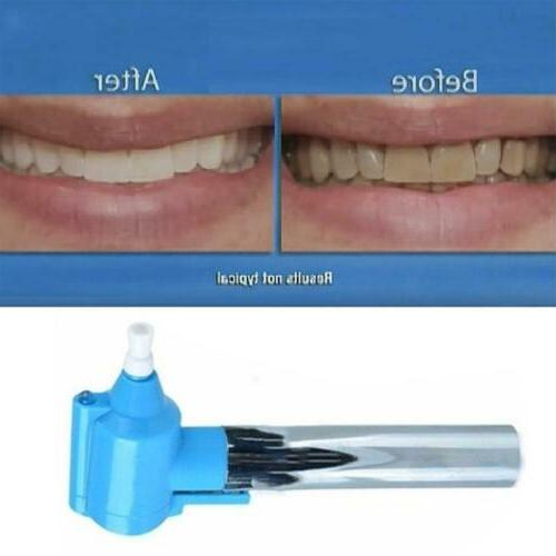 Electric Teeth Remover