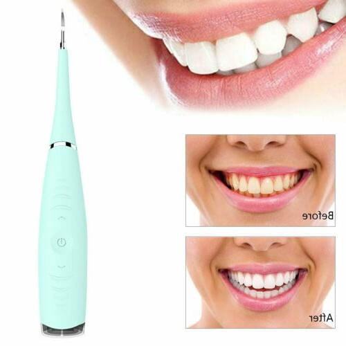 Electric Tooth Stain Whitener Plaque Remover