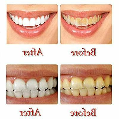 Intensive Stain Teeth Whitening Gums Blueberry