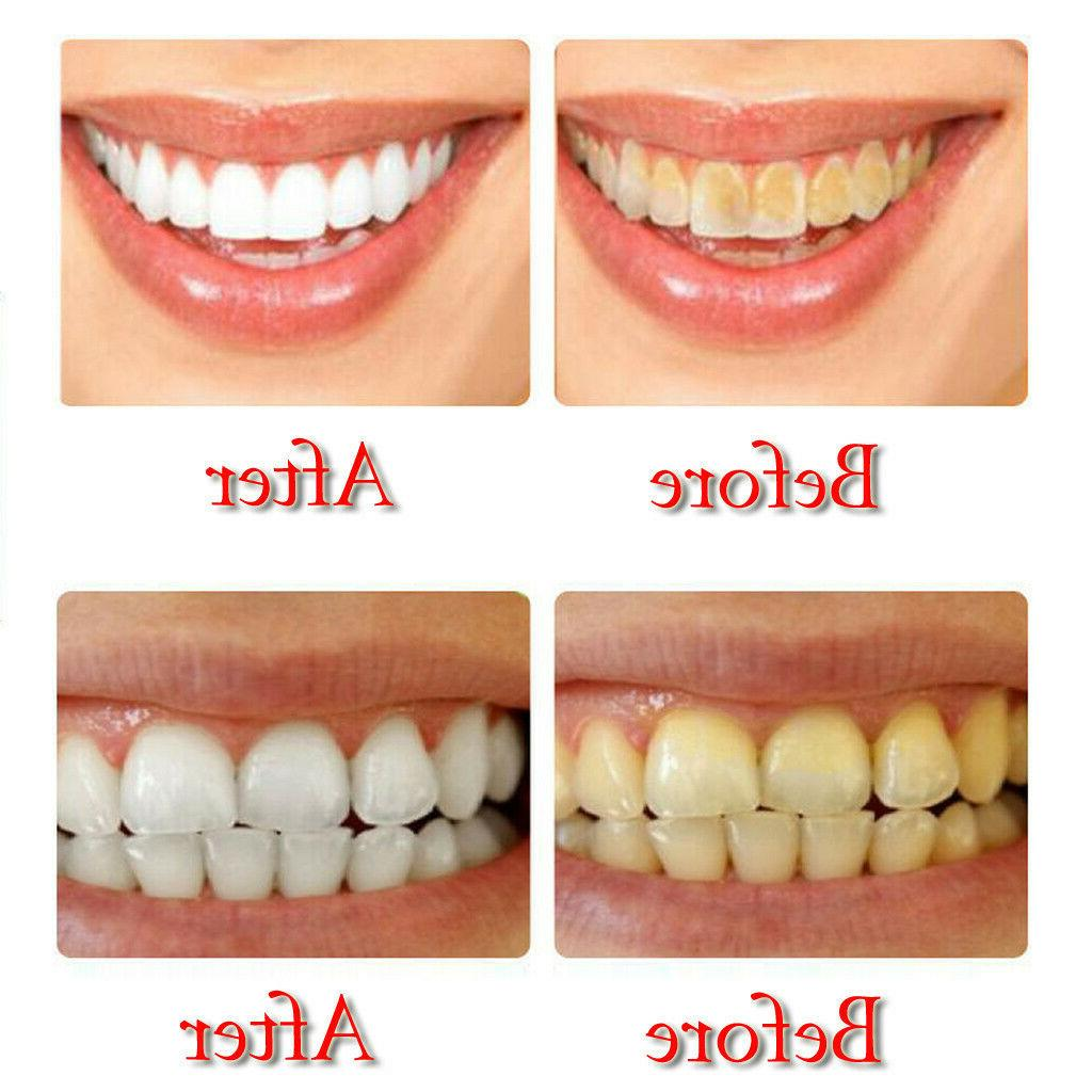 Natural Stain Whitening Toothpaste Fight Bleeding Gums