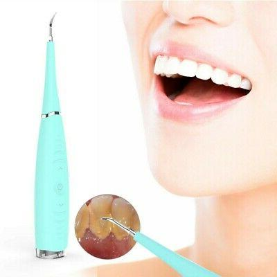 Oral Ultrasonic Electric Tooth Cleaner Teeth Stain Remover D